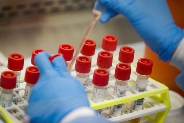 Viral testing Coronavirus